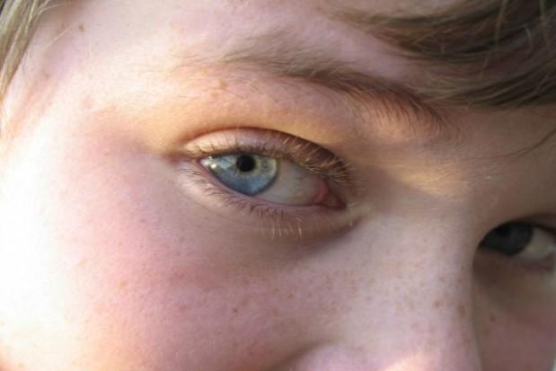 Pomoc okulistyczna dla poznańskich dzieci