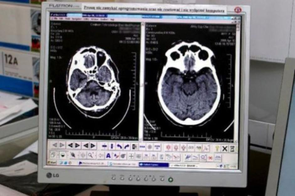 Oparzeniówka wzbogaciła się o tomograf