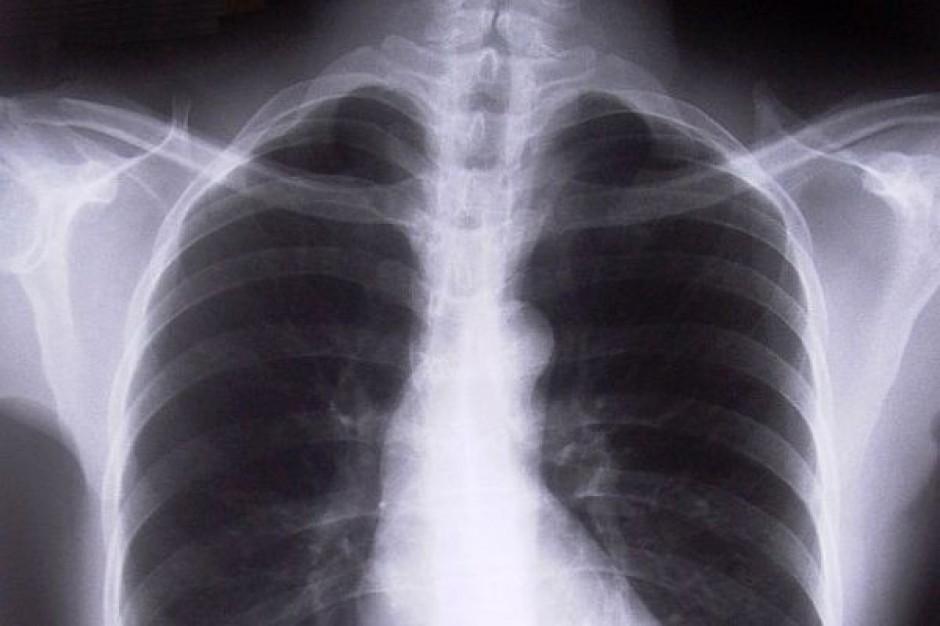 Są pieniądze na przenosiny oddziału płucnego