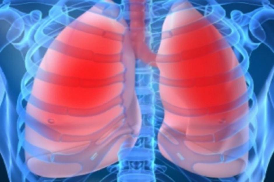 Zdrowe płuca Lubuszan – znów będą darmowe badania
