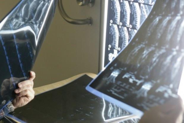 Szpital Rejonowy w Raciborzu oddaje radiologię