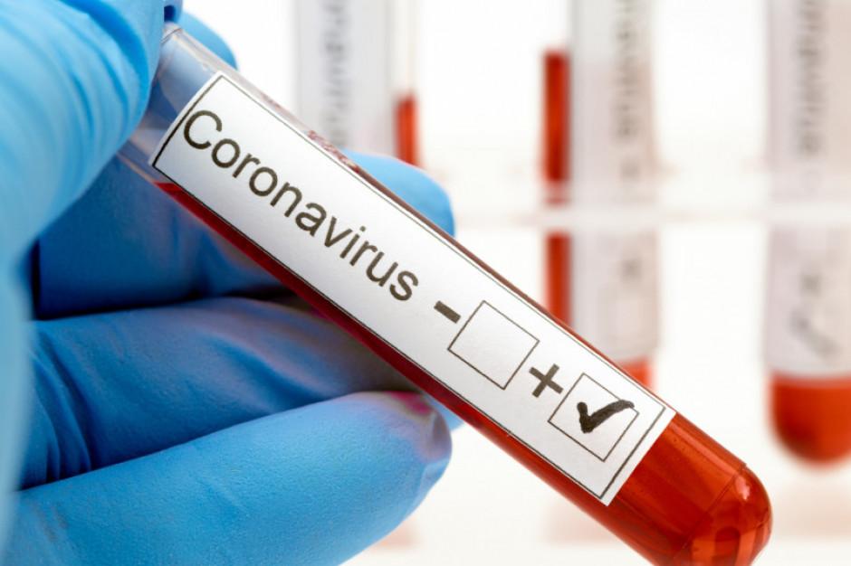 Ministerstwo Zdrowia: w szpitalach jest 388 chorych z COVID-19